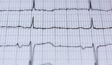 String Opus - badanie EKG